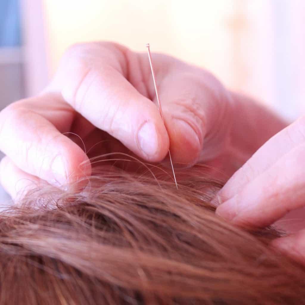 Acupuncture : prenez rendez-vous … quand vous êtes en pleine forme !